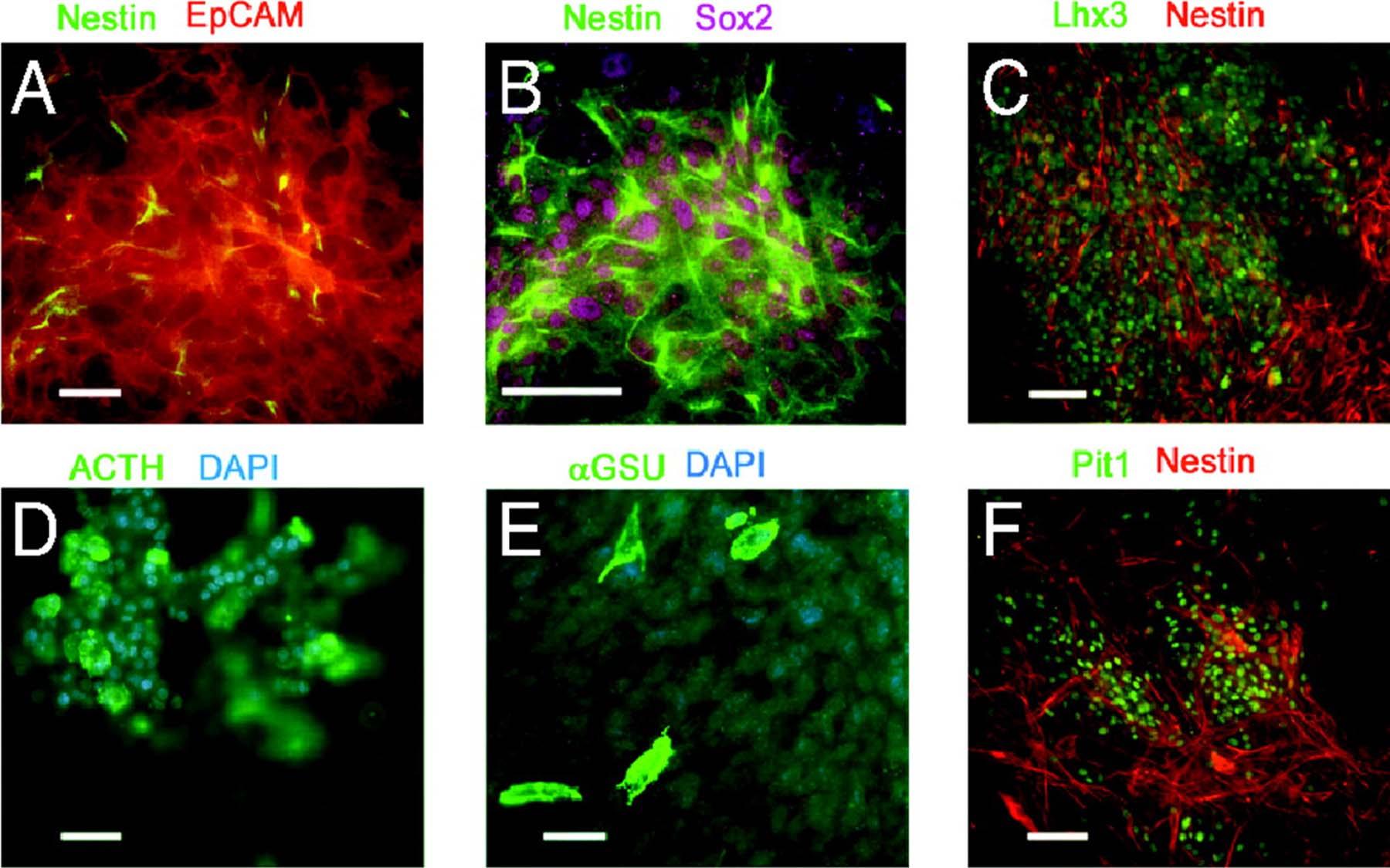 Nestin GFP postive cells