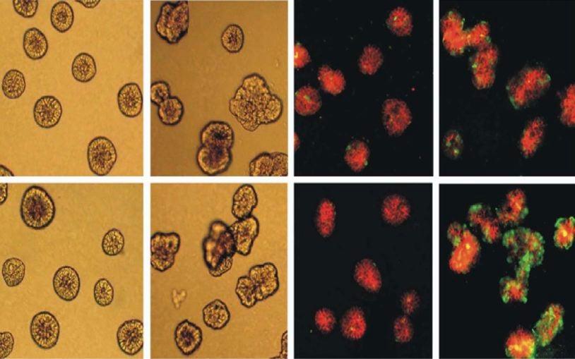 Brk enhances MCF-10A cells