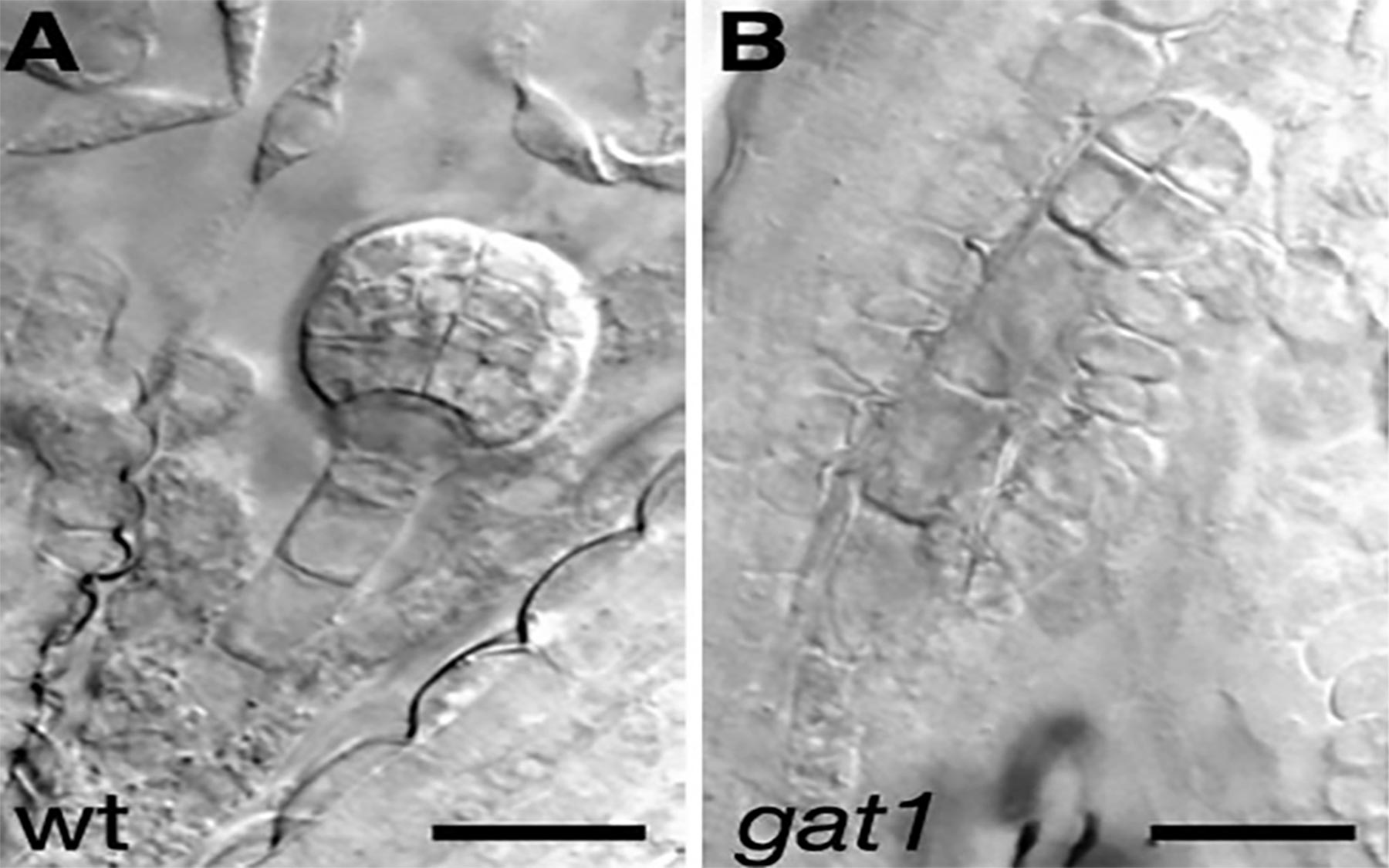 GAT1 embryos