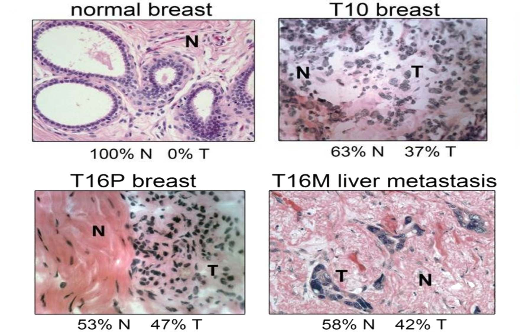 breast cancer genetic diversity