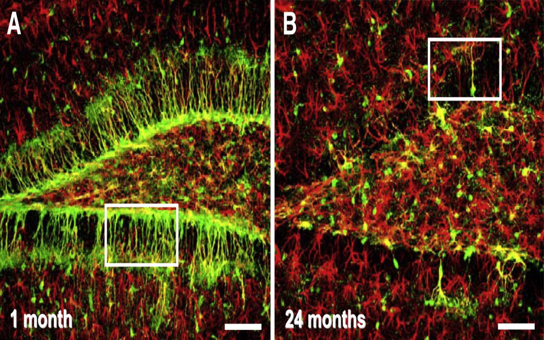 adult brain stem cells