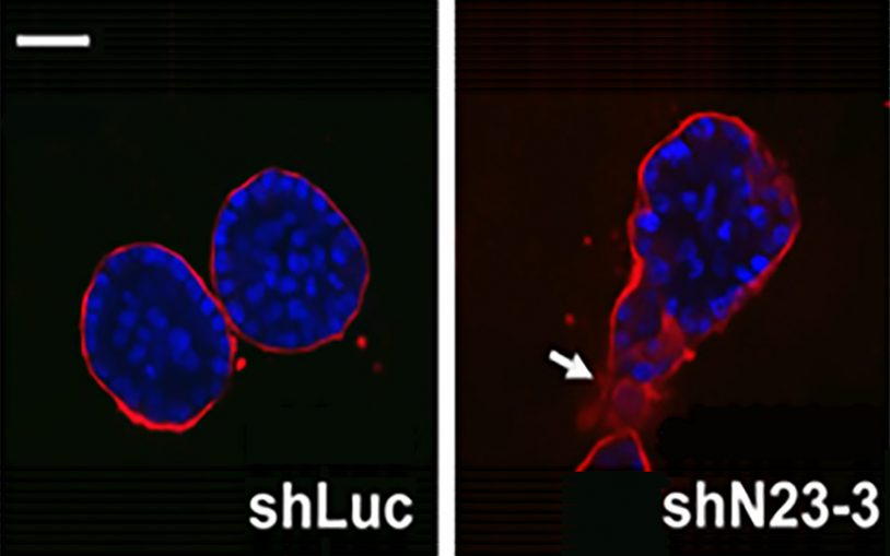 CSHL team identifies enzyme that is an important regulator of aggressive breast cancer development