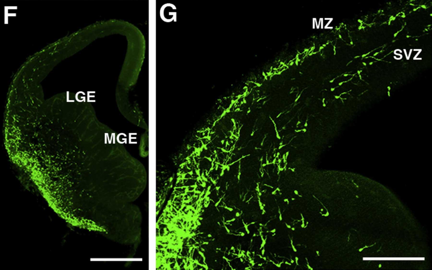 GABA neurons