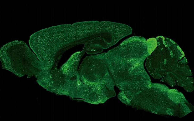 One experiment: Pinpointing inhibitory neurons across the mouse brain