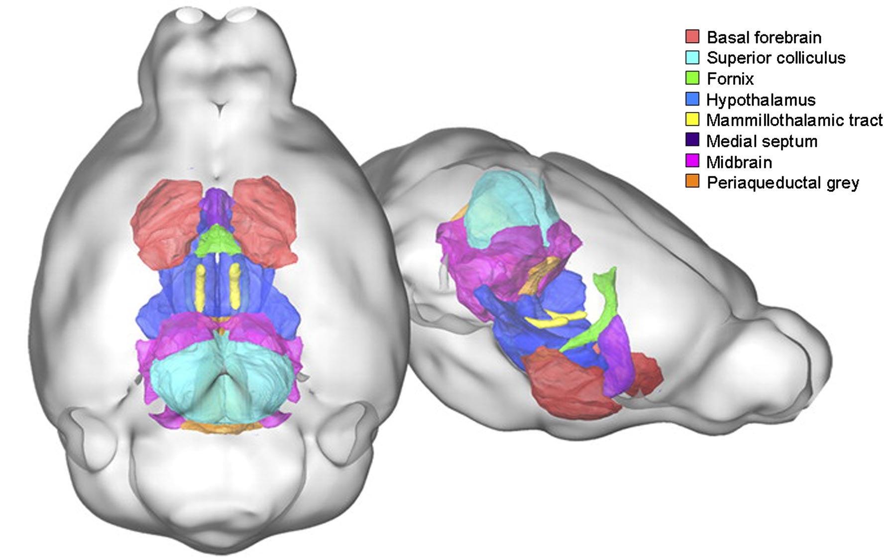autism brain structure