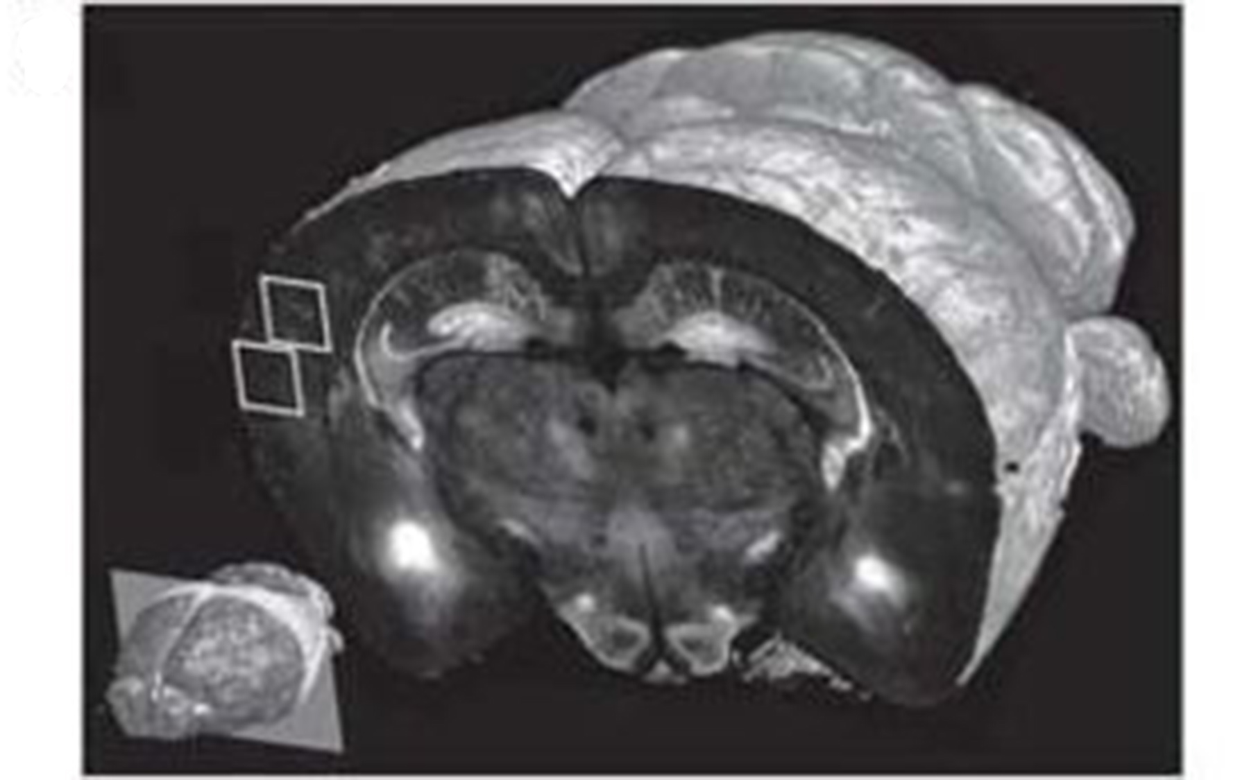 mouse brain tomography