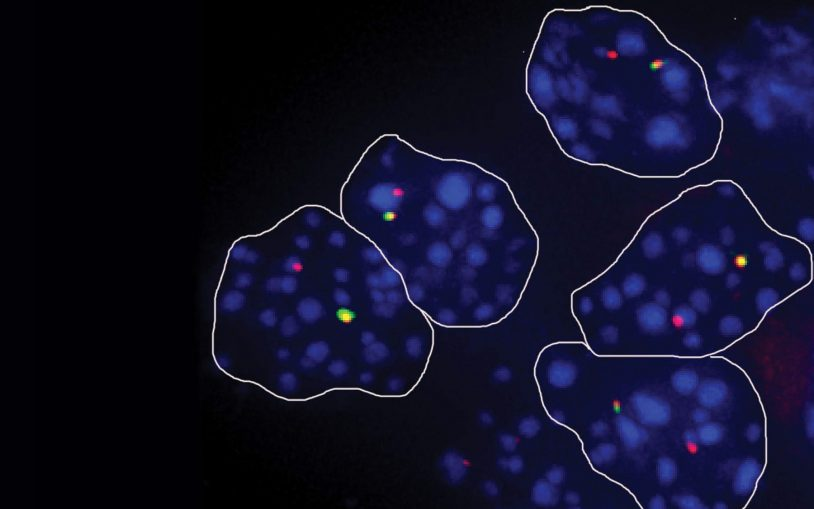 One experiment: Sometimes our cells express only one gene copy. Why?