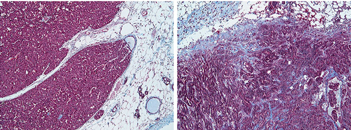 Breast Cancer tumor micro-environment