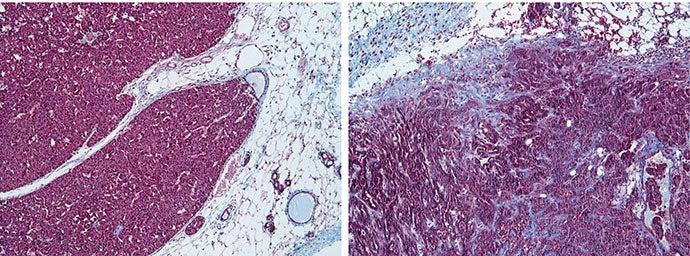 Breast Cancer tumor micro-environment