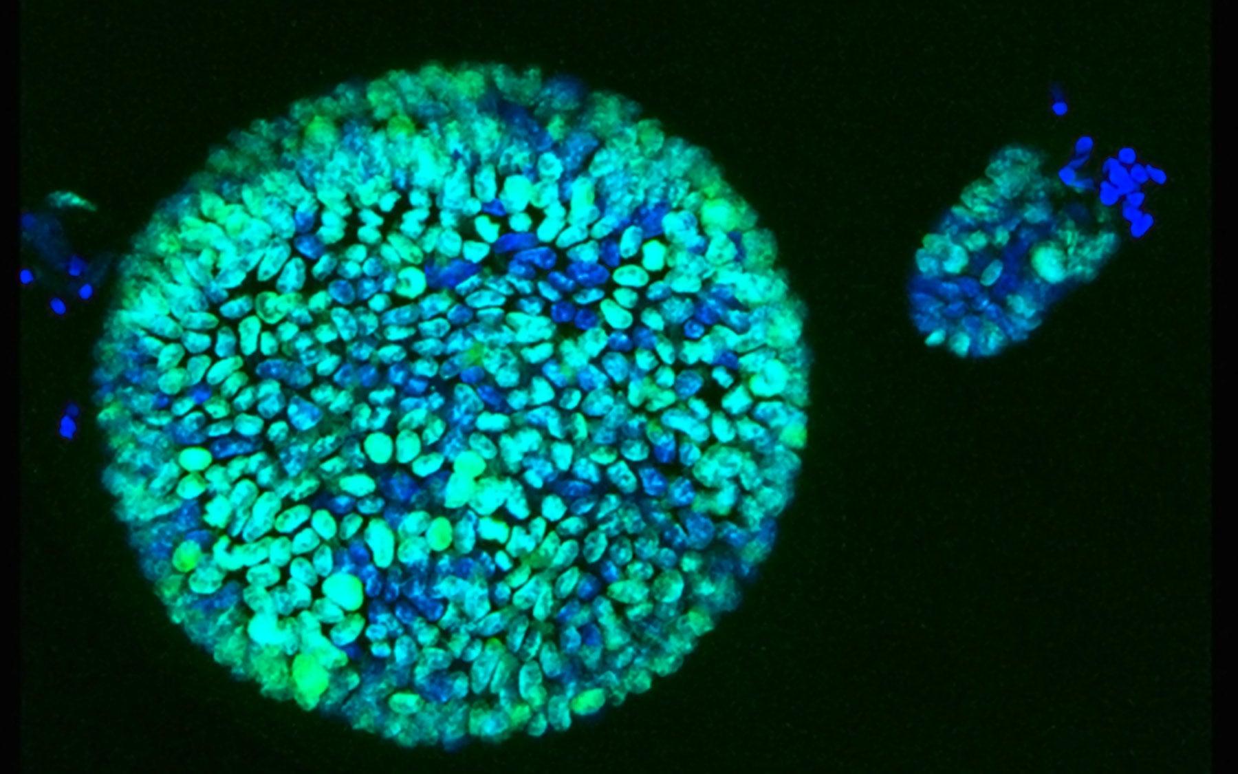 blue organoids