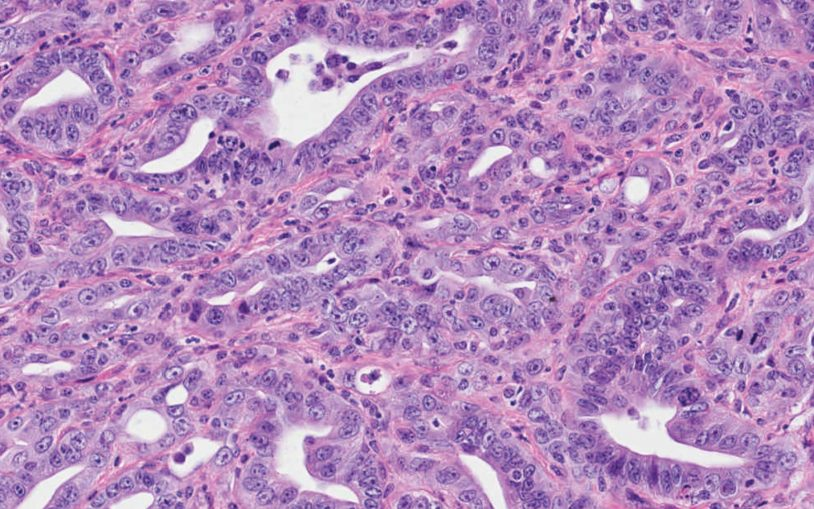 Long-sought mechanism of metastasis is discovered in pancreatic cancer