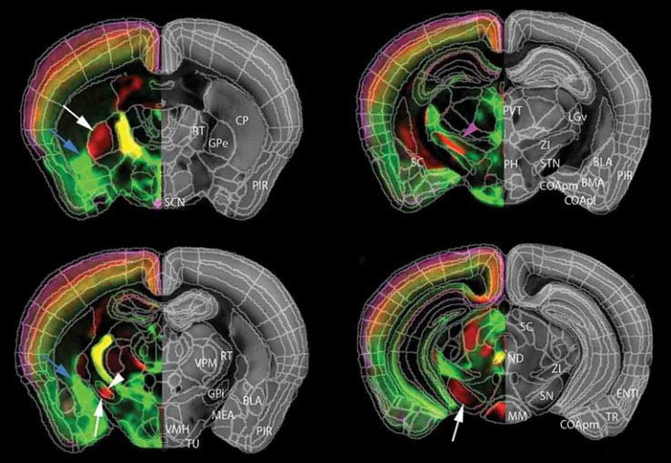 neuroscience qBrain mapping