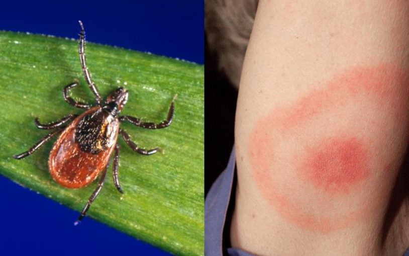 Next Generation Lyme disease tests found efficacious and ready for clinical arena