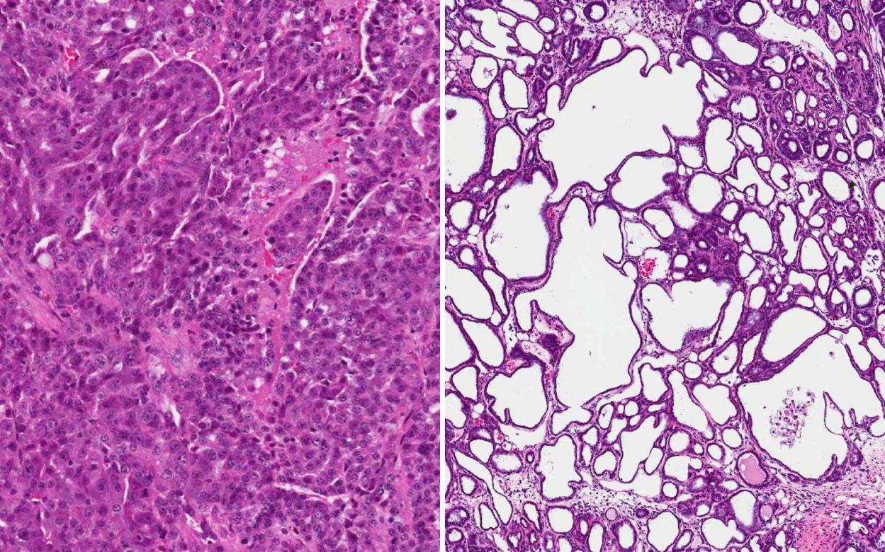 metastatic breast tumor