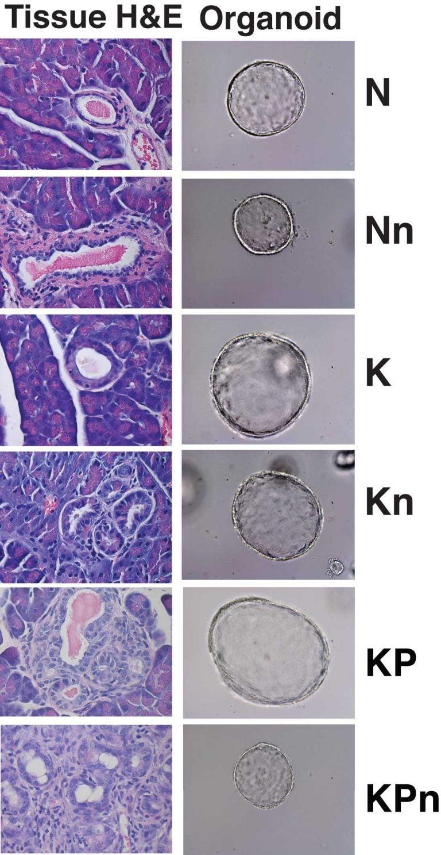 pancreas organoids