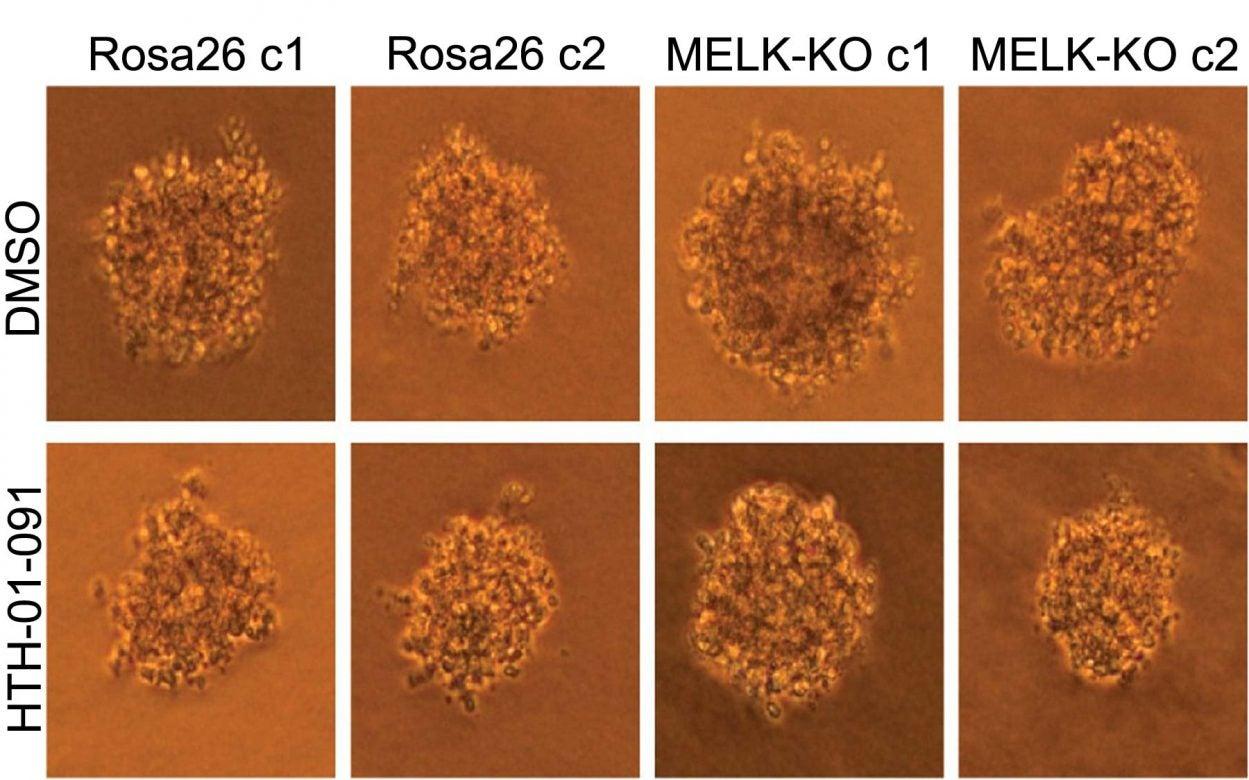 human colon cancer cells