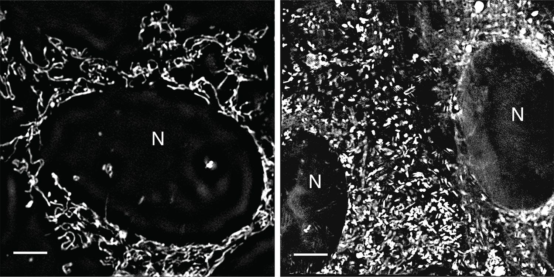 PTEN healthy cells