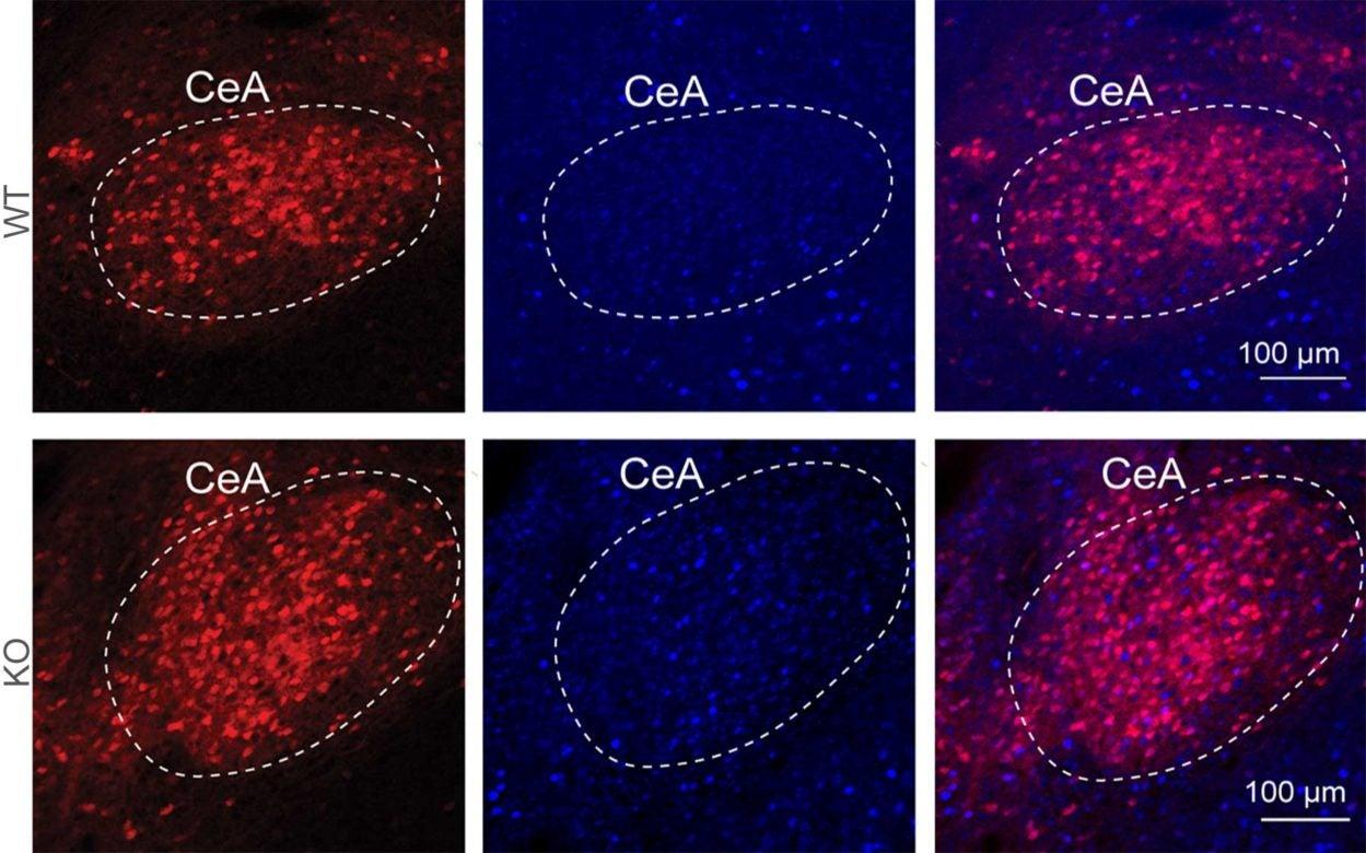 central amygdala neurons