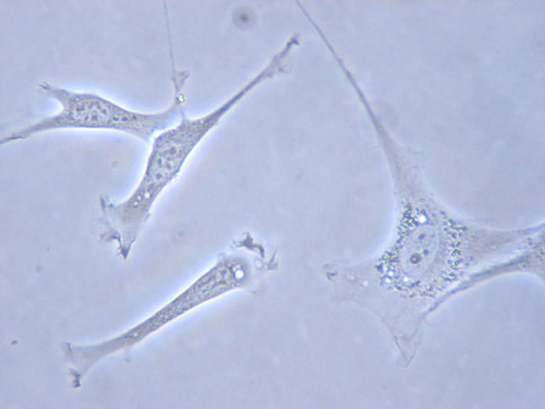 mouse embryo fibroblasts