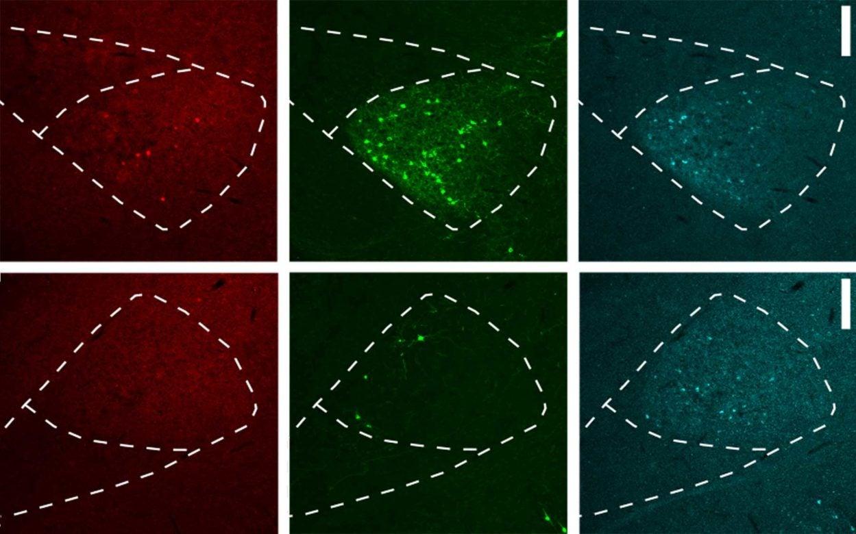 retrograde viral tracing method