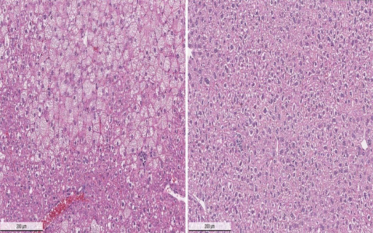 Wilsons disease mouse model