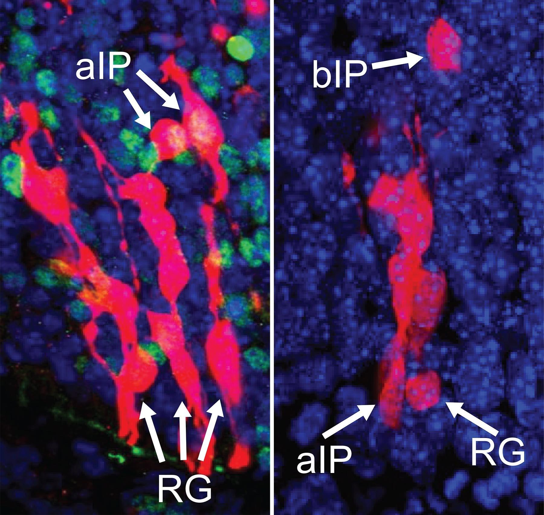 ancestor RG cells