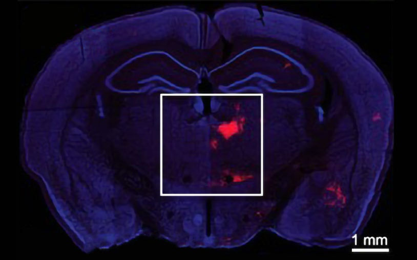 Mouse brain coronal section Bo Li