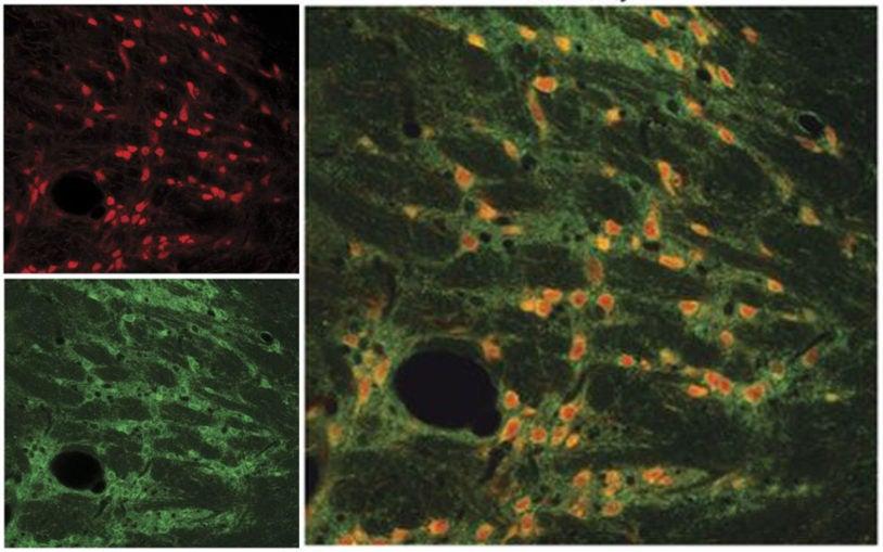 Cortex Thalamus and TRN neurons