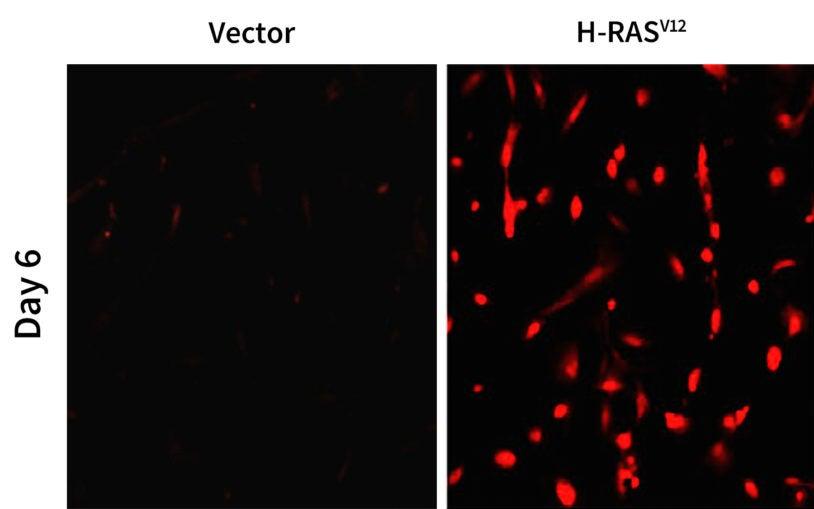 oncogene H-RAS fluorescent
