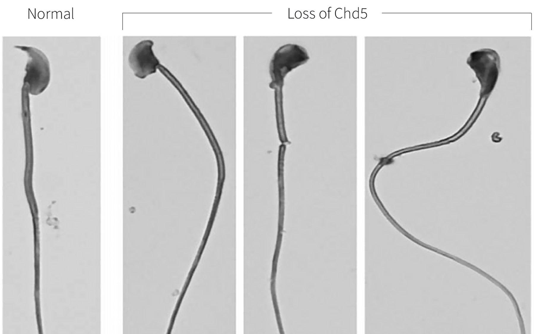 Sperm Chd5 loss