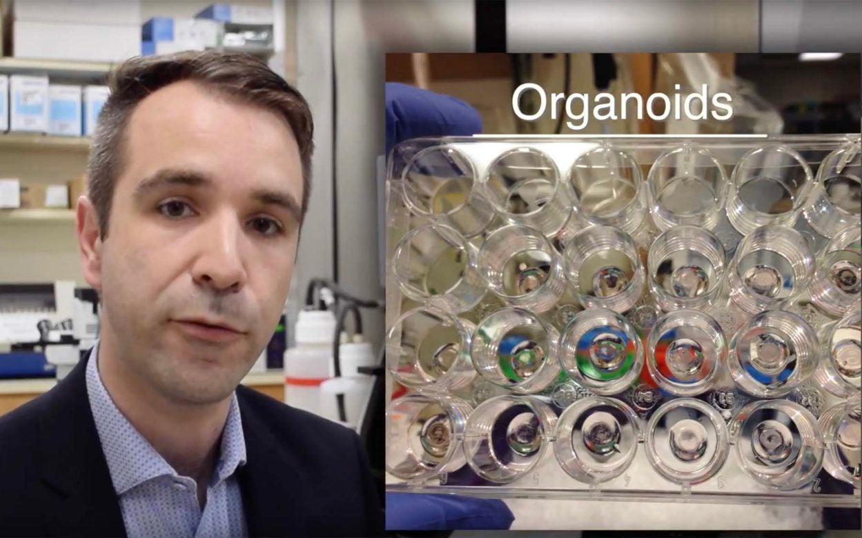 Organoids pancreatic cancer treatment