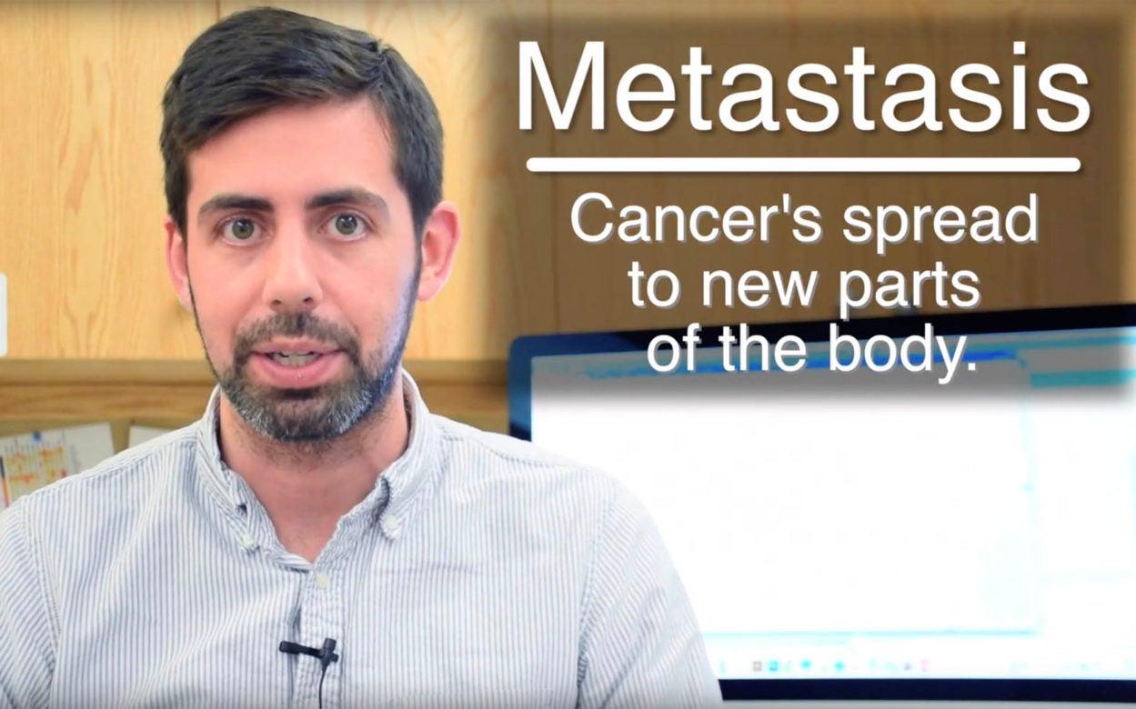 Jason Sheltzer Metastasis