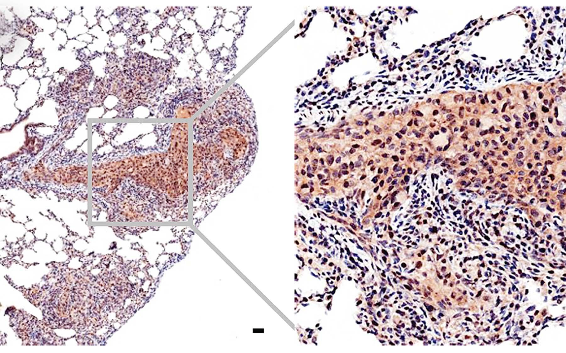 Trotman Myc prostate cancer