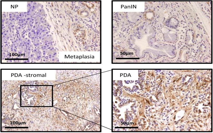 CTGF in KPC tumors