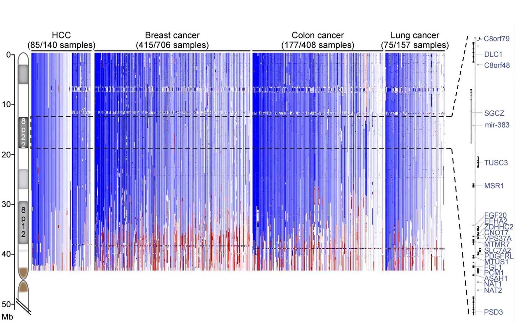 Chromosome 8p deletion