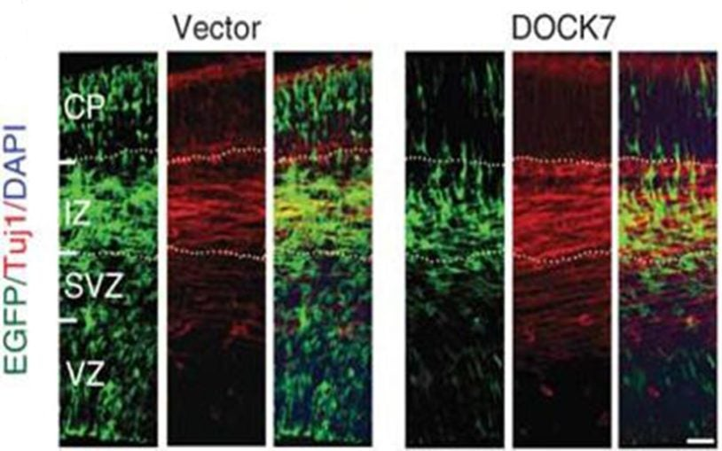Research identifies protein that regulates key 'fate' decision in cortical progenitor cells