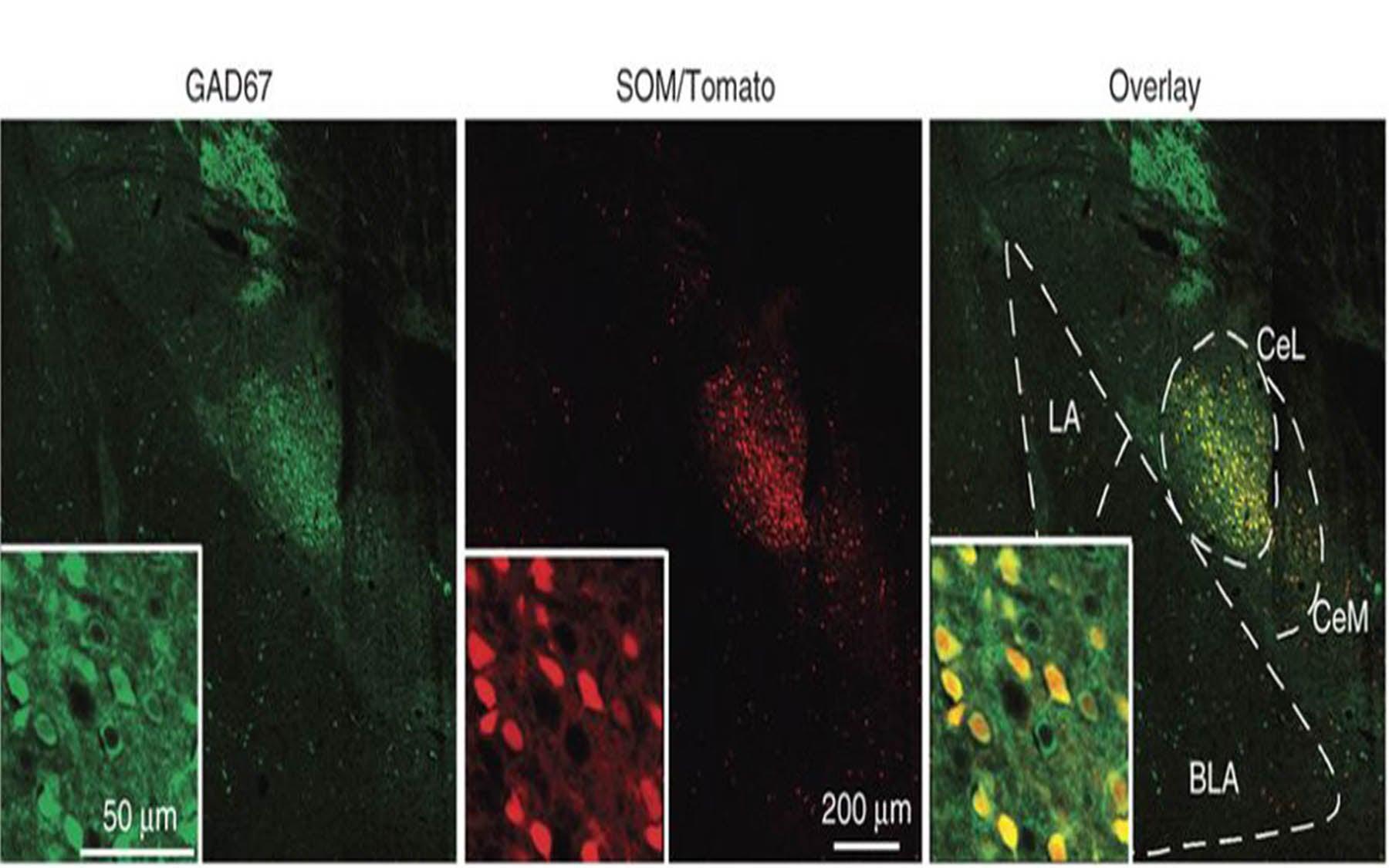 GAD67 antibody coronal brain