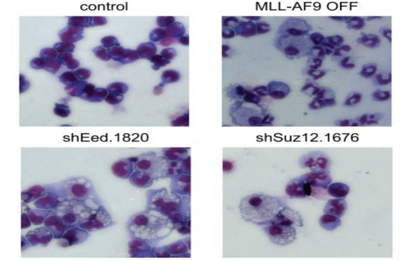 'Druggable' protein complex identified as a therapeutic target in acute myeloid leukemia