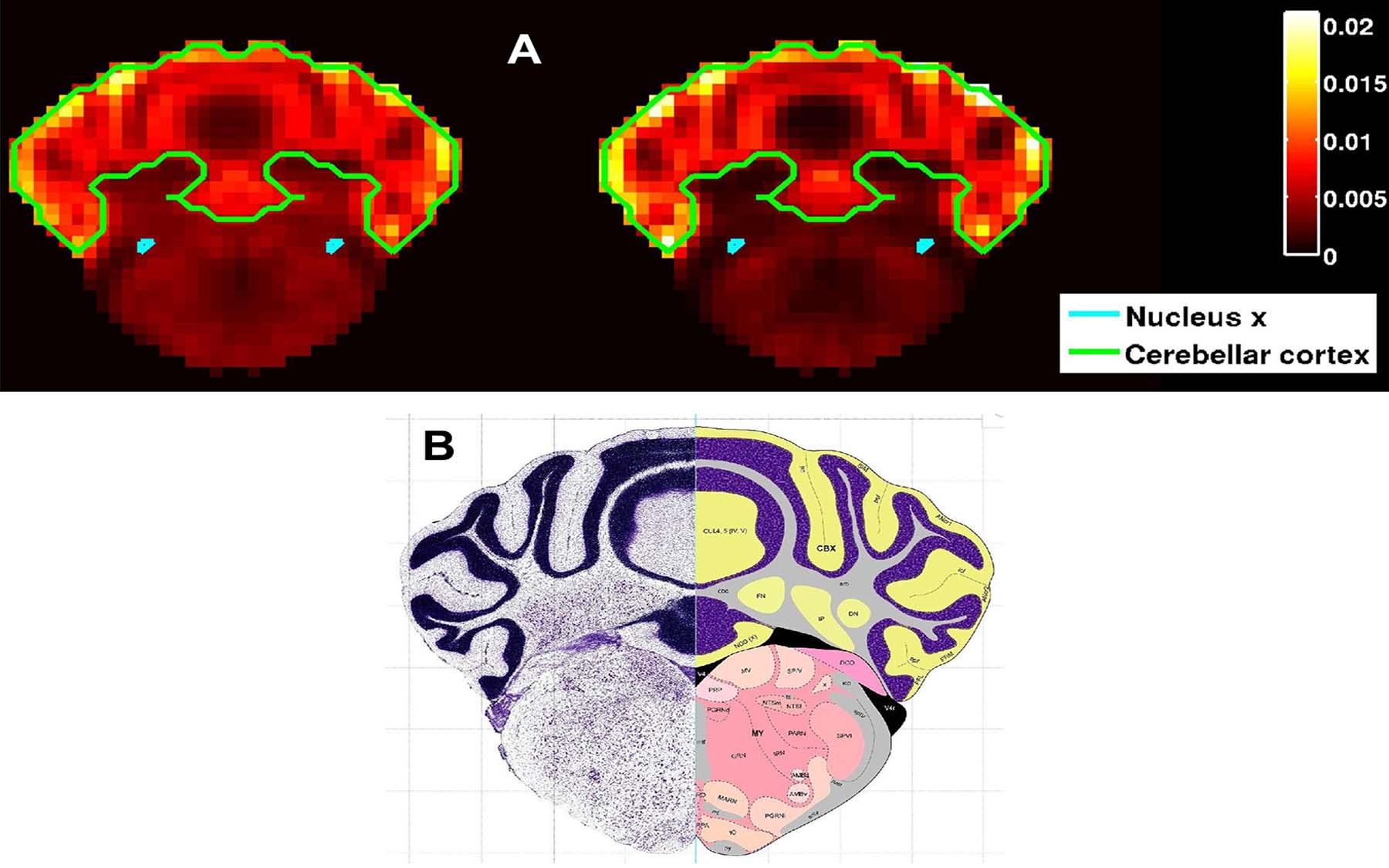 Nucleus X Cerebellar cortex