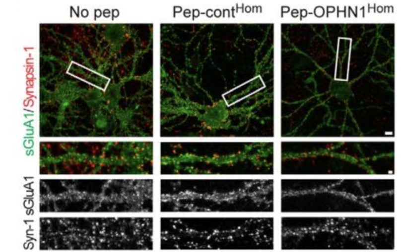 Neuroscientists explain how mutated X-linked mental retardation protein impairs neuronal function