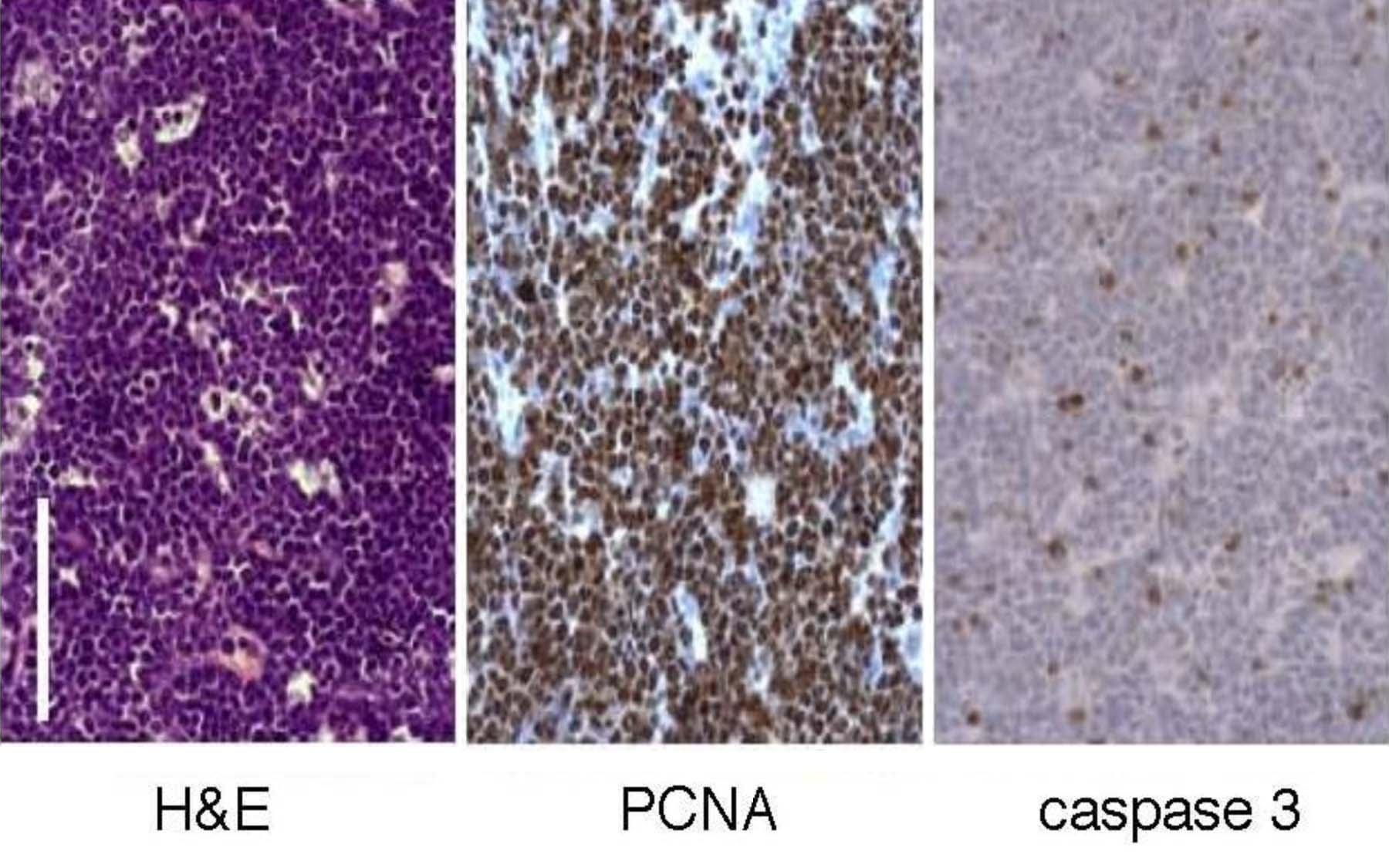 RNAi in vivo lymphoma model