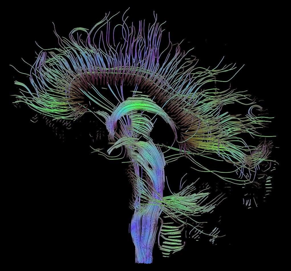 DTI sagittal fibers
