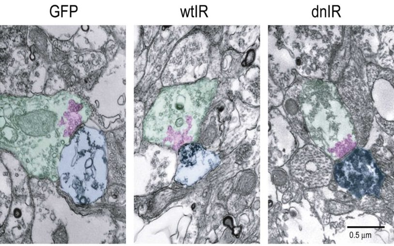 Neuroscientists show insulin receptor signaling regulates structure and function of brain circuits