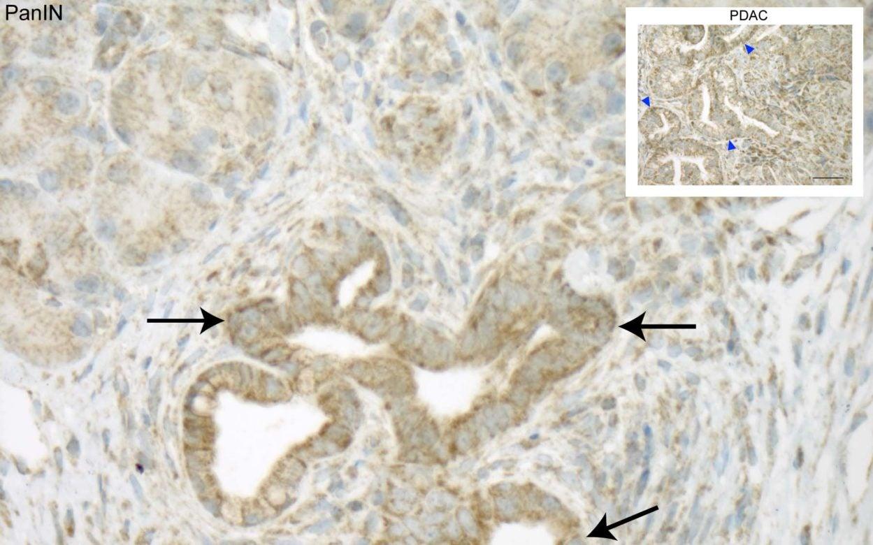 NIX protein PDAC Tuveson