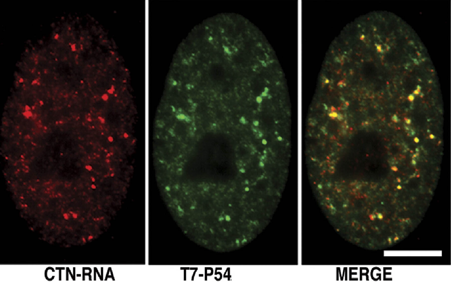 CTN-RNA paraspeckles