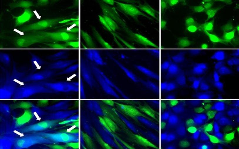 Spontaneous fusion hybrids cells