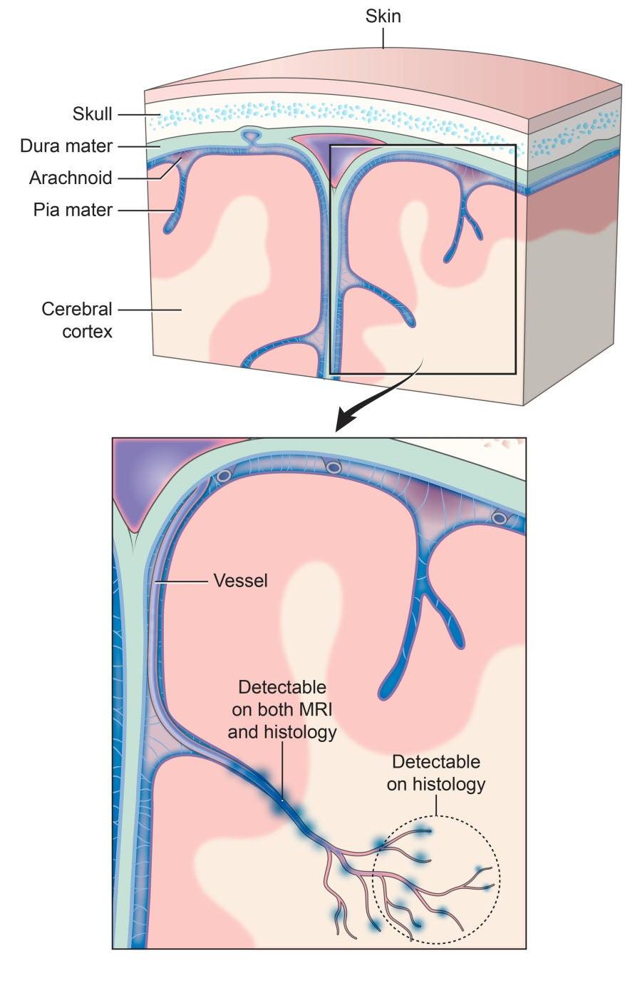 Photo of Tramatic vascular injury