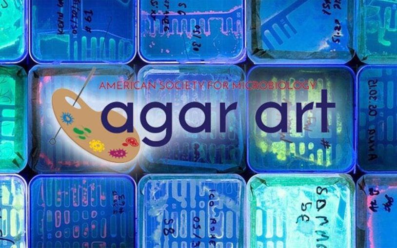 Saturday DNA! Agar Art