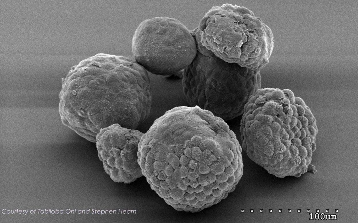 electron microscopy image of organoids