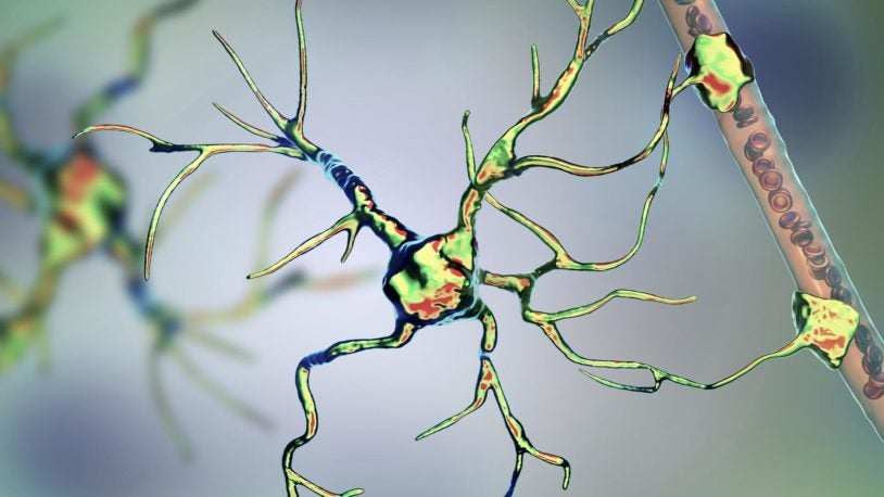 image of Astrocytes in the brain